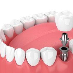 one dental implant