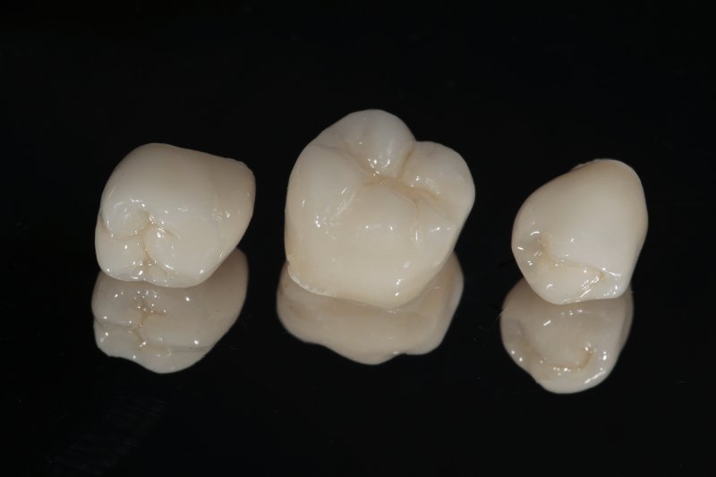 three different types of dental crowns all used to protect weakened teeth