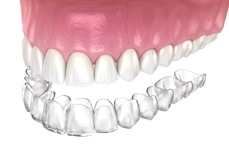 a digital image of an Invisalign aligner preparing to go on over the top arch of teeth